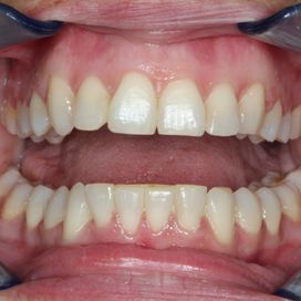 Six Month Smile - After